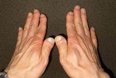 """親指が極端に太い""""まむし指""""の方いますか?"""