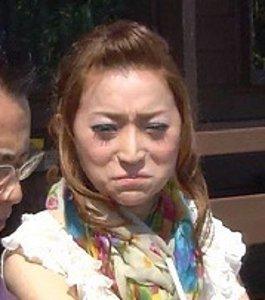 """加藤茶の嫁・綾菜の顔の不自然な膨張に囁かれる""""整形後のダウンタイム"""""""