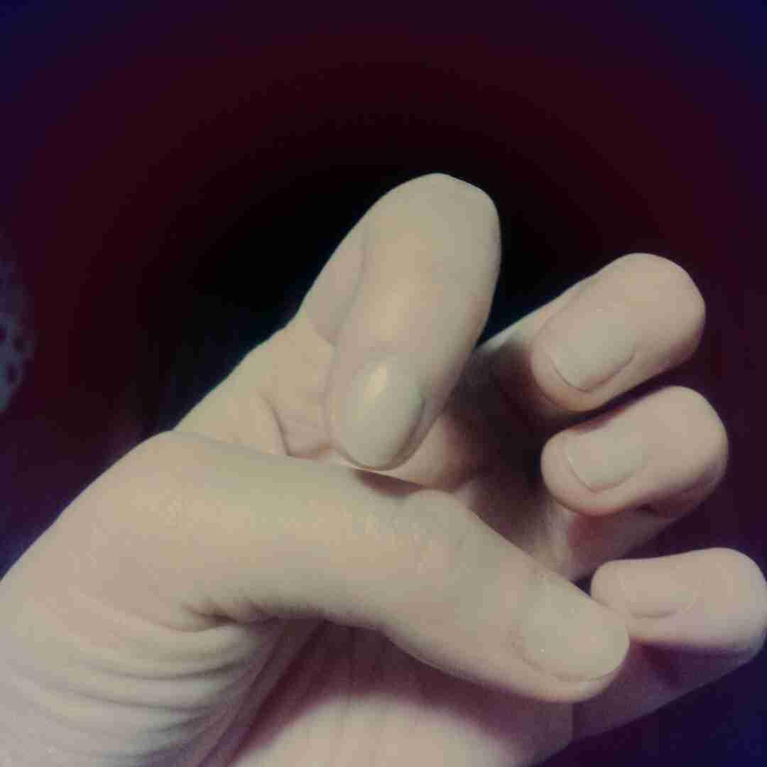 爪噛み癖のある人・あったひと語りませんか??