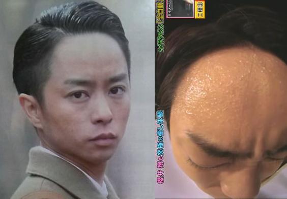 【悲報】関ジャニ∞の錦戸亮(29)がハゲてる…