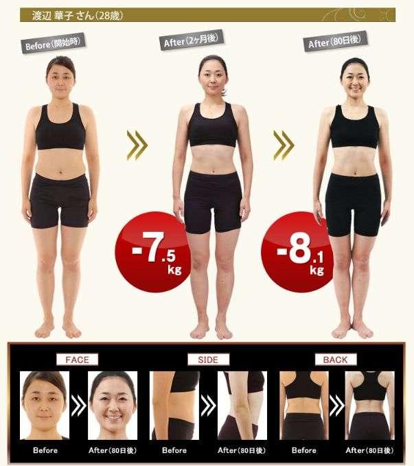 脂肪吸引の経験者、もしくは考えてる方いますか?