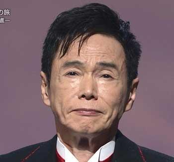 高須クリニック大阪院院長が整形芸能人の見分け方を暴露