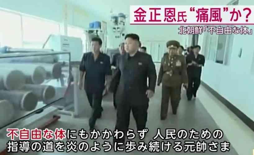 北朝鮮の金正恩(31歳)、高尿酸血症・高脂血症・肥満・糖尿・高血圧・痛風で健康状態が大変なことになっているらしい…
