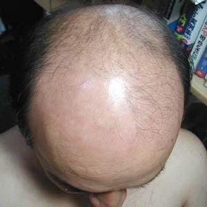 ハゲしく求む!彼が薄毛系男子になりそうで…「育毛の真実」