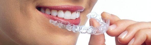 小児歯科矯正について語りませんか?