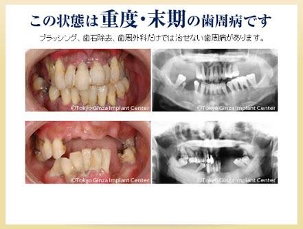 歯周病の人いますか?