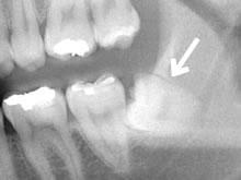 歯医者について(不快な思い)