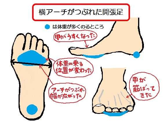 足の幅が広い人におすすめの靴 ...
