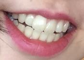 社会人から歯科矯正された方