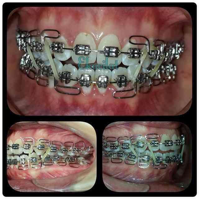 歯科矯正中のキスの仕方