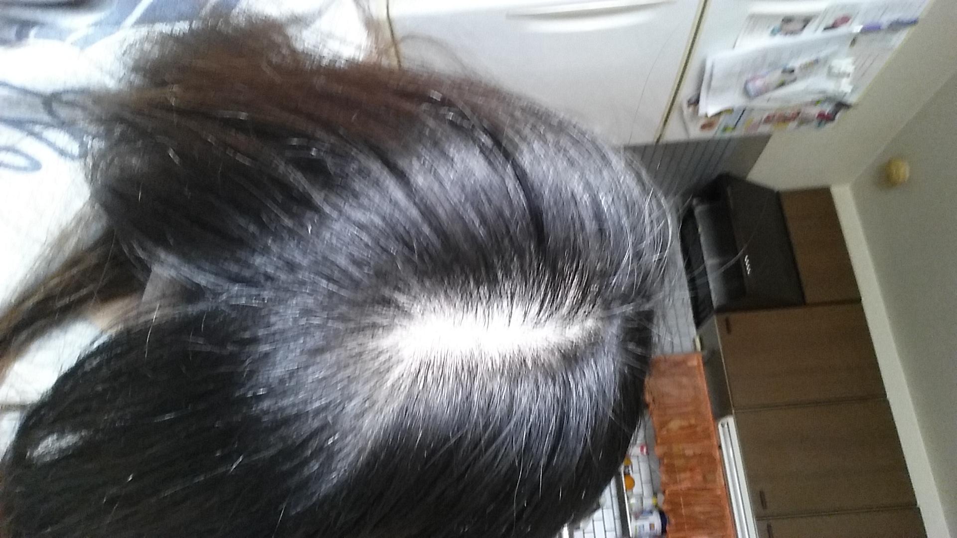 女性で薄毛細毛のかた、どんなヘアケアしてますか?