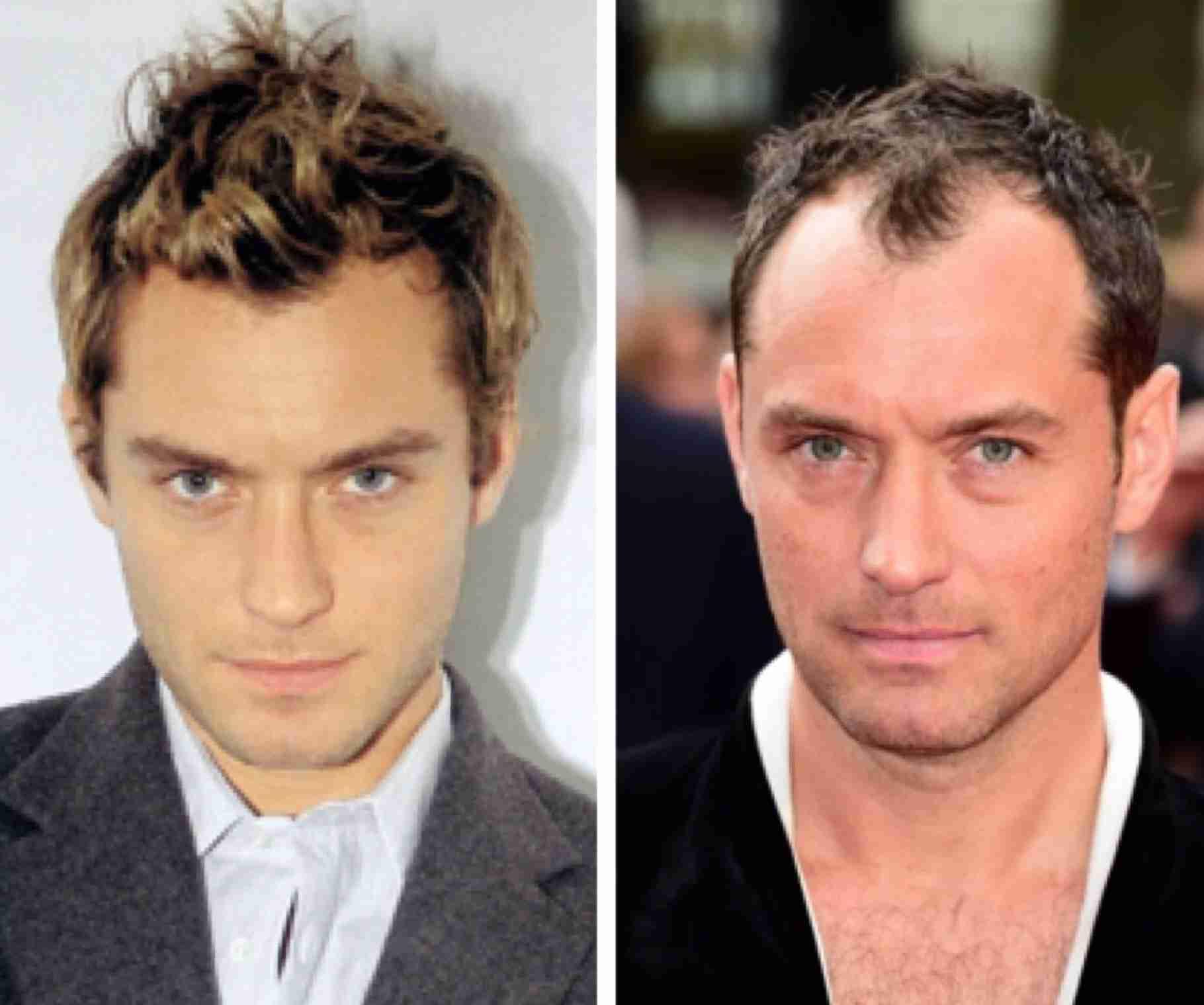白髪やハゲ…美男子だったのに急激におっさん化した有名人4選!