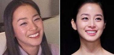 歯列矯正で顔が変わった方いらっしゃいますか?