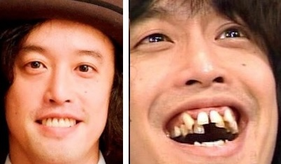 歯の矯正した人のその後。