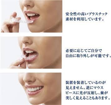 少し歯並びの悪い人〜!!
