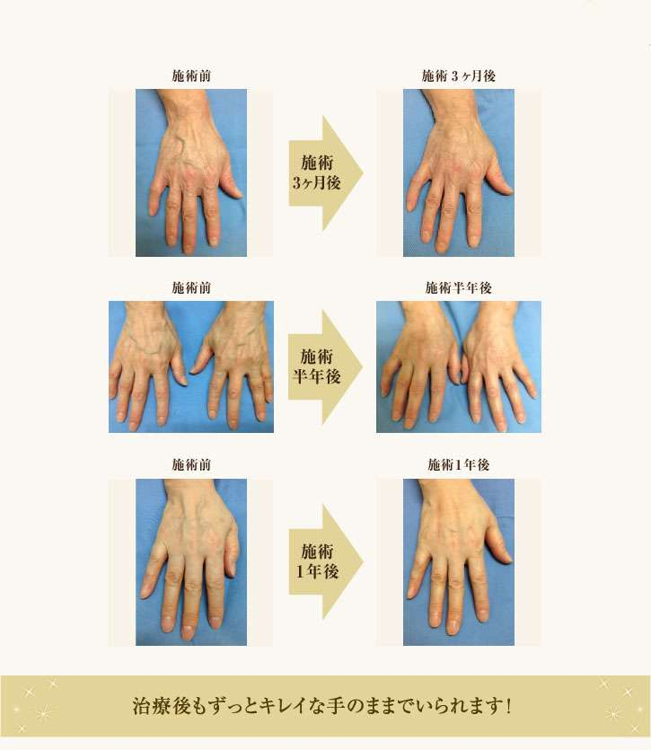 マドンナ、10万円で美しく蘇った手を堂々披露!