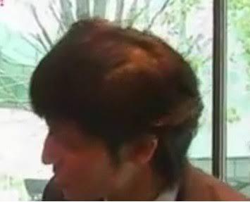 髪が薄い人!!対策何してますか?