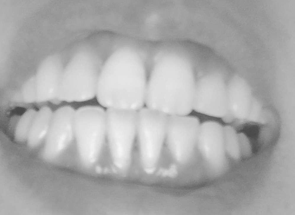出っ歯を矯正した人、矯正を考えてる人