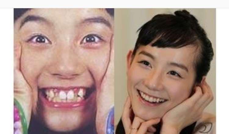 歯列矯正で顔が変わった人!