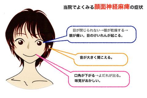 顔面神経麻痺の闘病経験あるかたいますか?