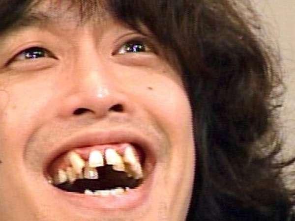 不自然な歯だと思う有名人
