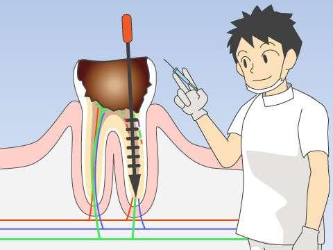 雛形あきこ『奥歯の根っこに器具』入ったまま放置され顔腫れる
