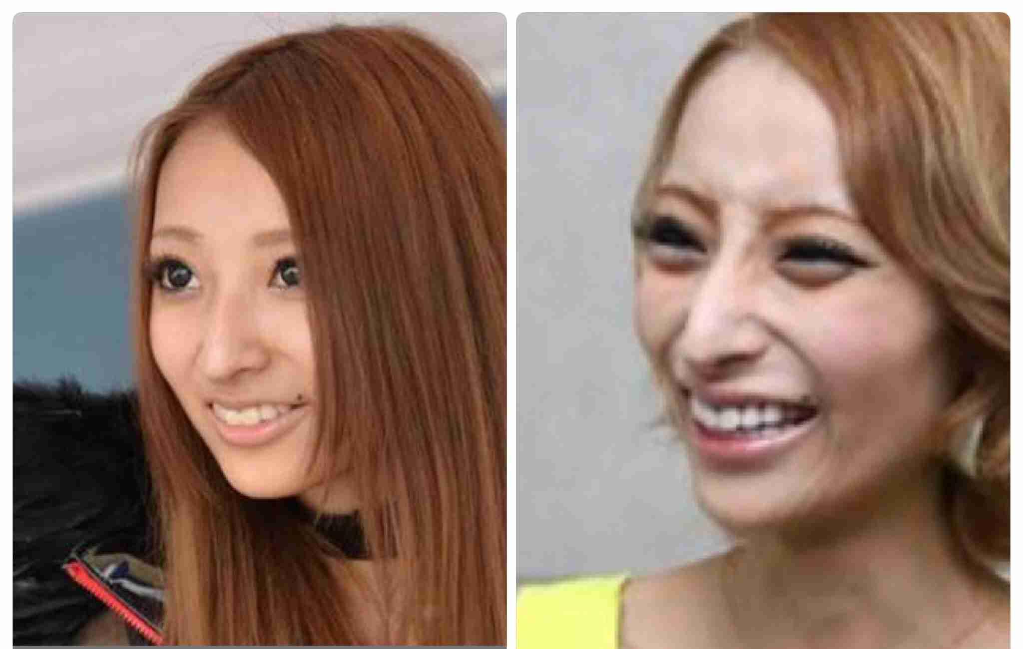 """加藤紗里 目と胸は整形の可能性高く、鼻は天然…美容整形外科医が""""診断"""""""