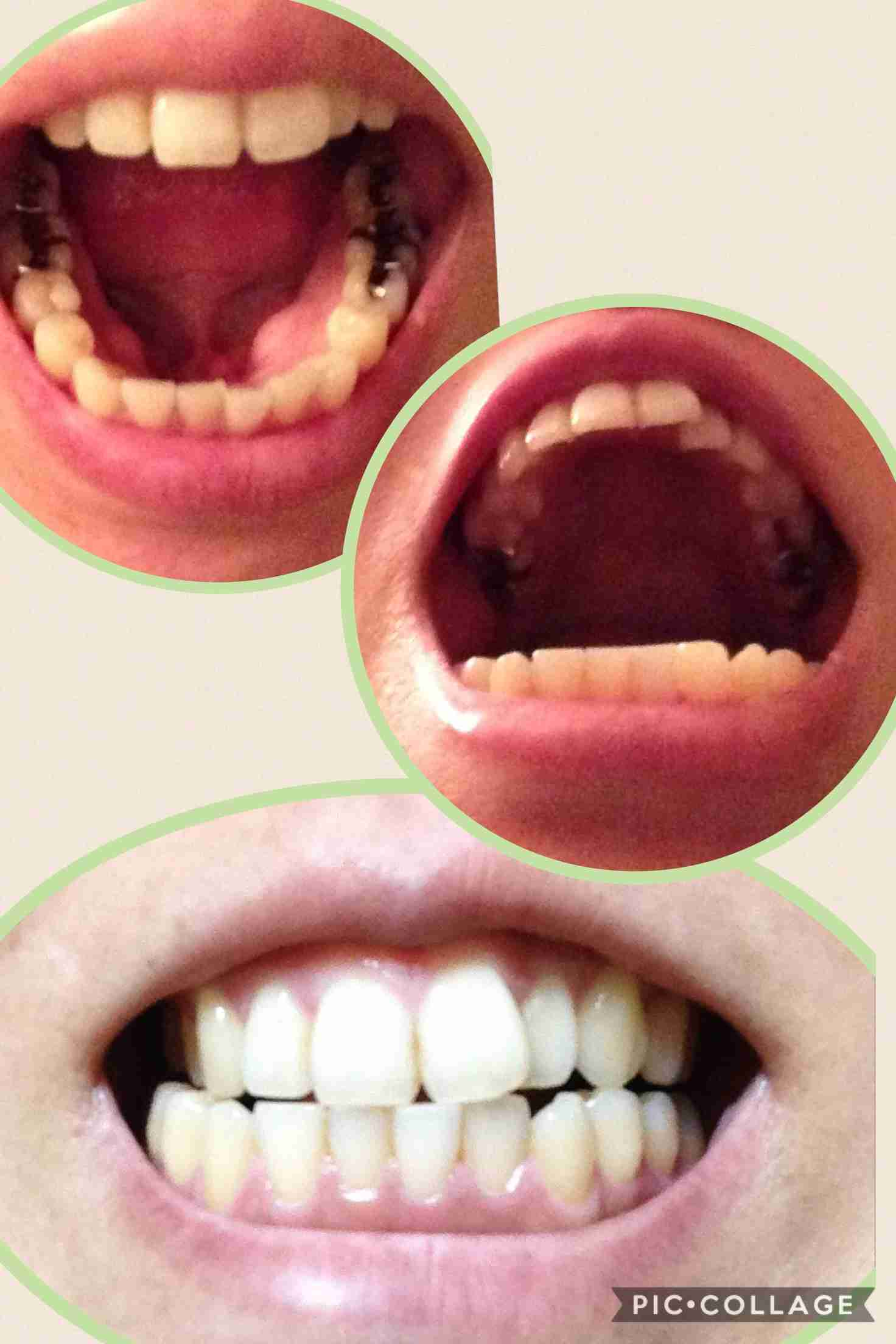 歯並びコンプレックス