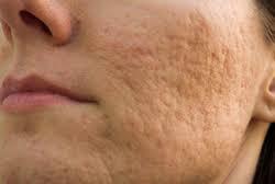 クレーター肌の治療について