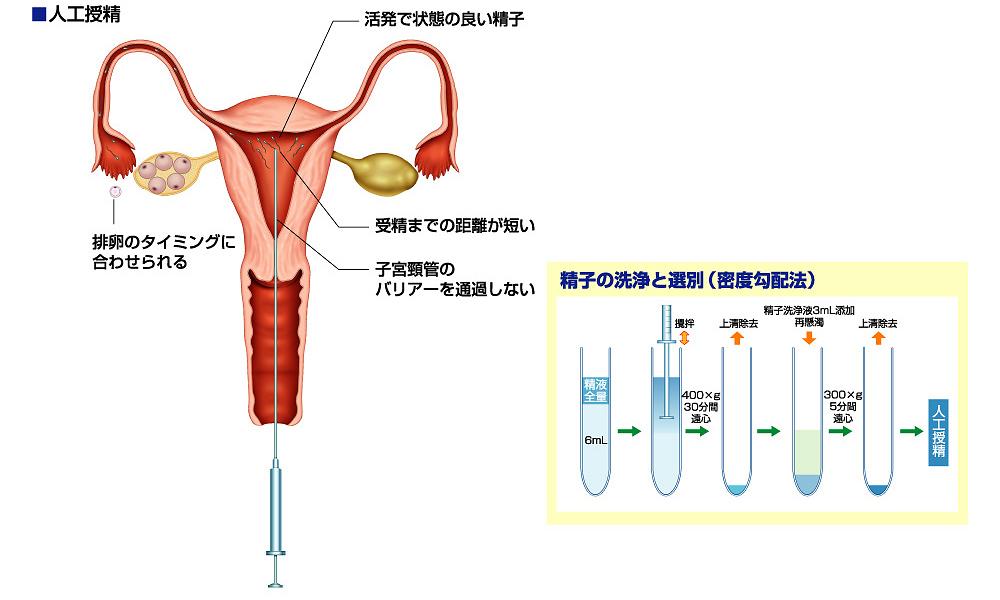 子供を人工受精で授かった方限定