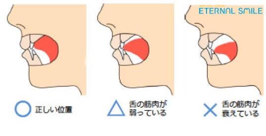 口ゴボを治すには歯列矯正かセットバックか
