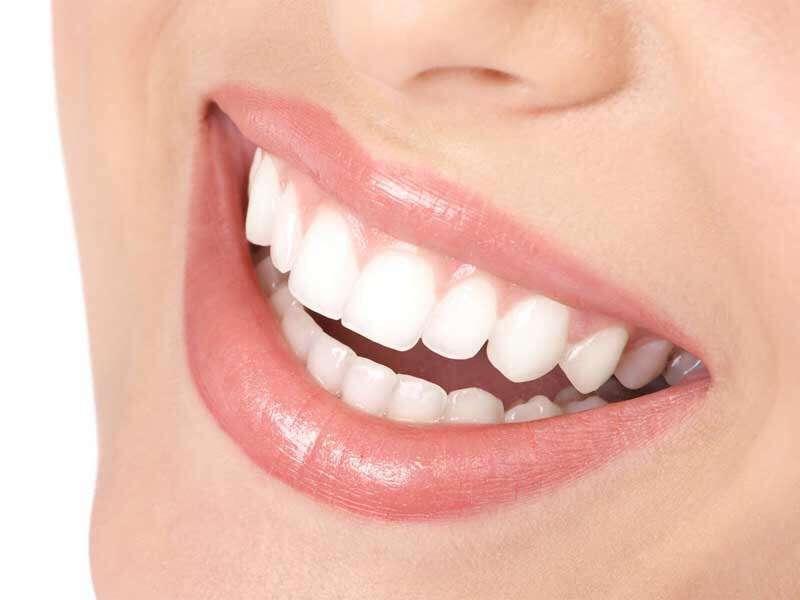 歯のホワイトニングしてる人