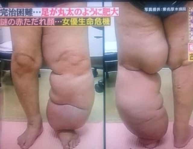 小林麻央が新治療!通い始めた「リンパ浮腫予防」クリニック