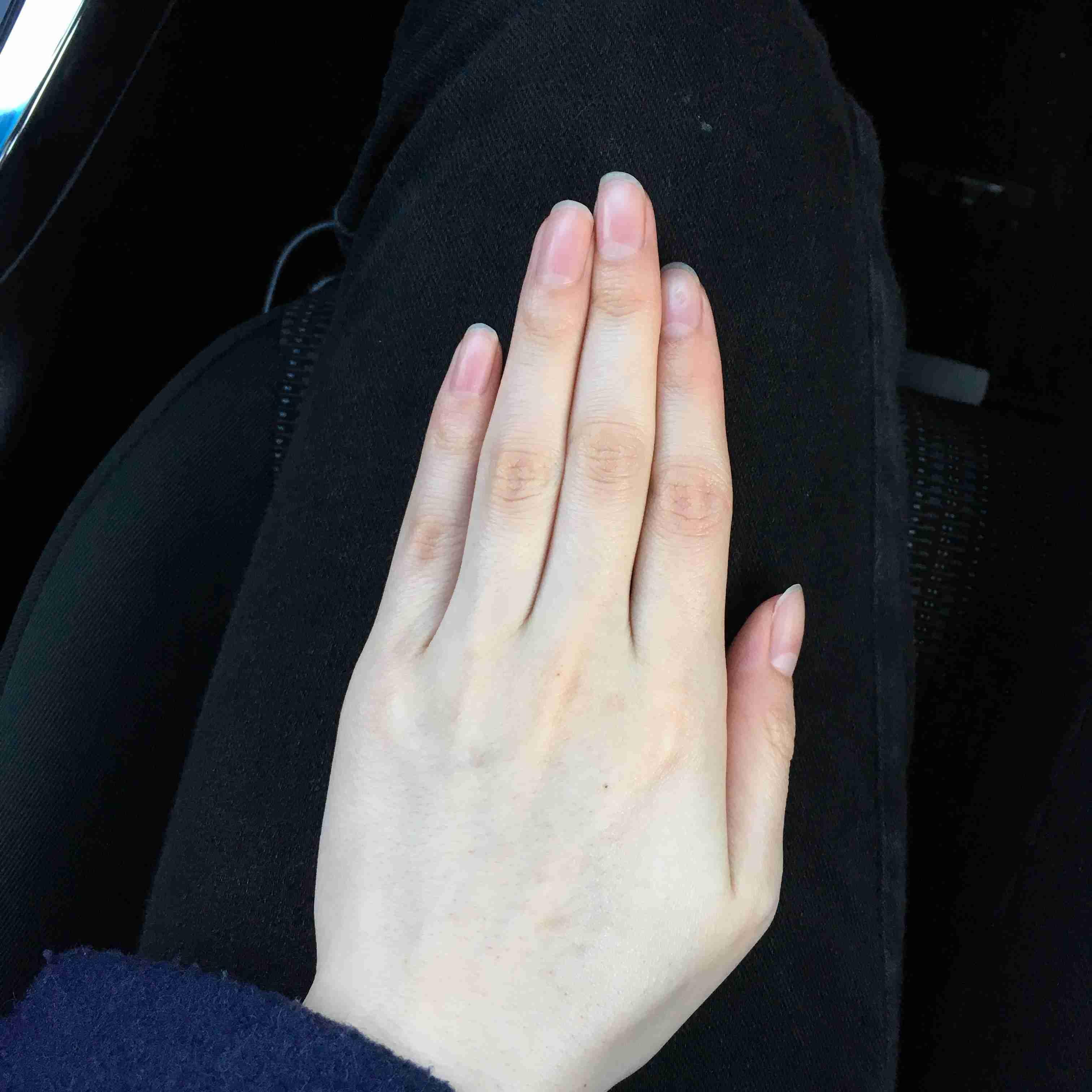 手の爪の形