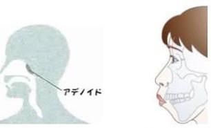 アデノイド顔貌で悩んでる人