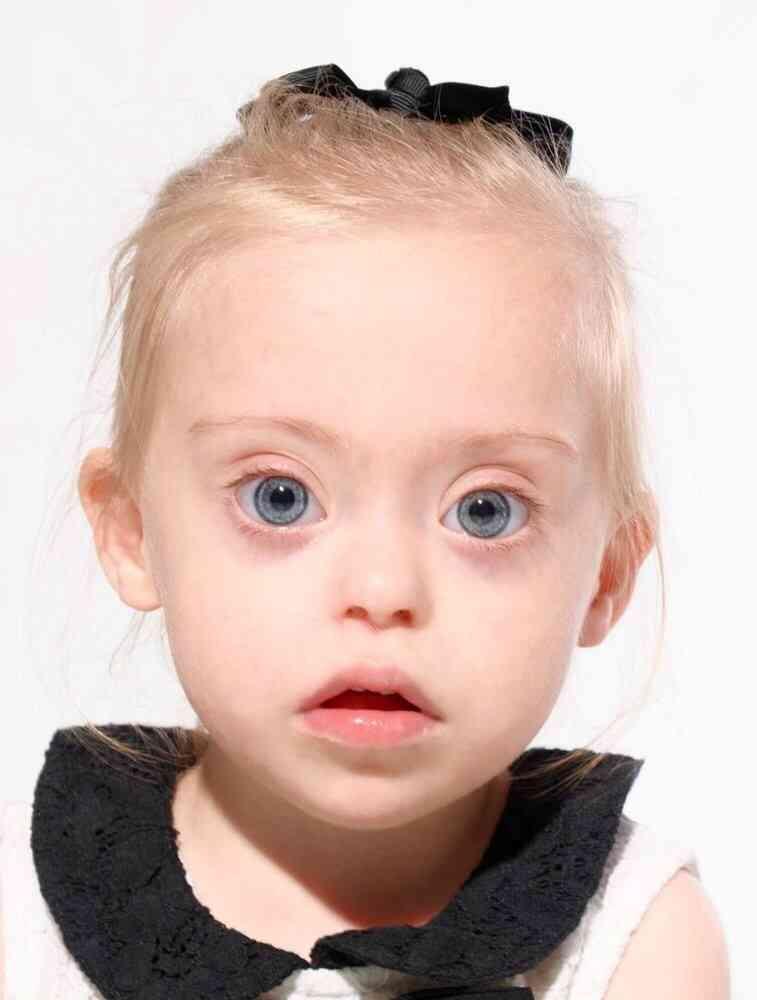 ダウン症の2歳児 英ディスカウント量販店「マタラン」の顔に