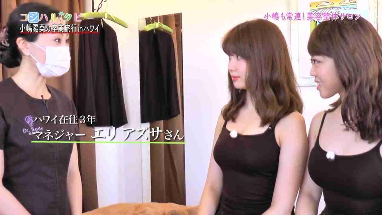 AKB48峯岸みなみ 強い整形願望…手術見積もり額180万円「横顔がすごいブス」