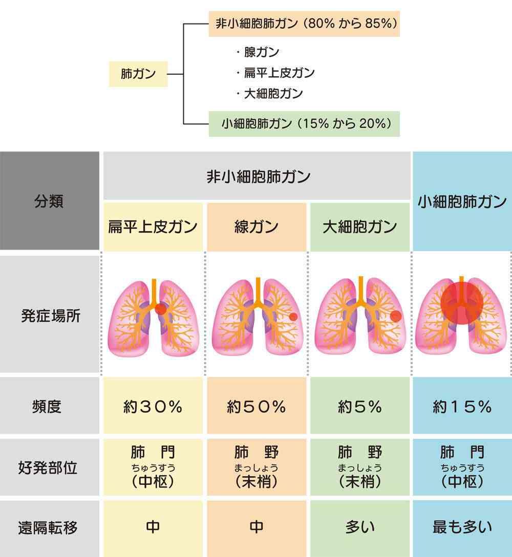 中村獅童、初期の肺腺がんで手術へ…健康診断で判明 6~7月の舞台休演