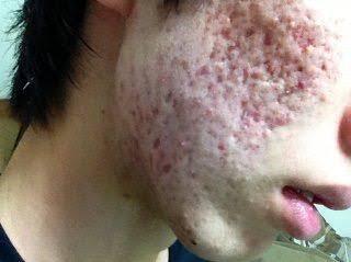 肌は綺麗だけどスタイルは悪いのと、スタイルは良いけど肌が汚いのではどっちがいい?