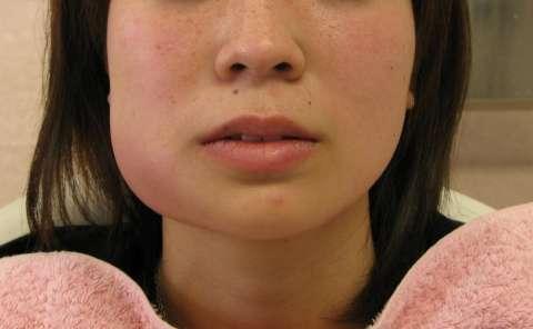 指原莉乃、抜歯で腫れすぎて顔の形変わる