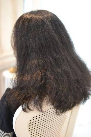 髪のお悩み相談