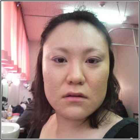 濃い顔のブスはどうするべき?