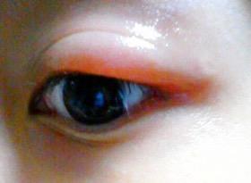 目が腫れやすい人