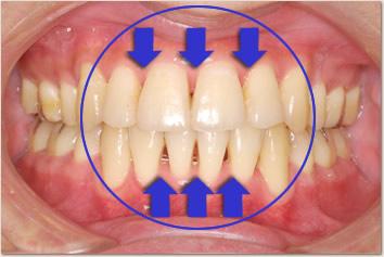 あなたの歯ぐき健康ですか?