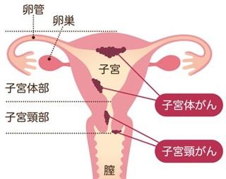 子宮体がん検診した事ありますか?