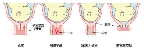 最期の言葉は「息できない」 神戸でも無痛分娩医療事故