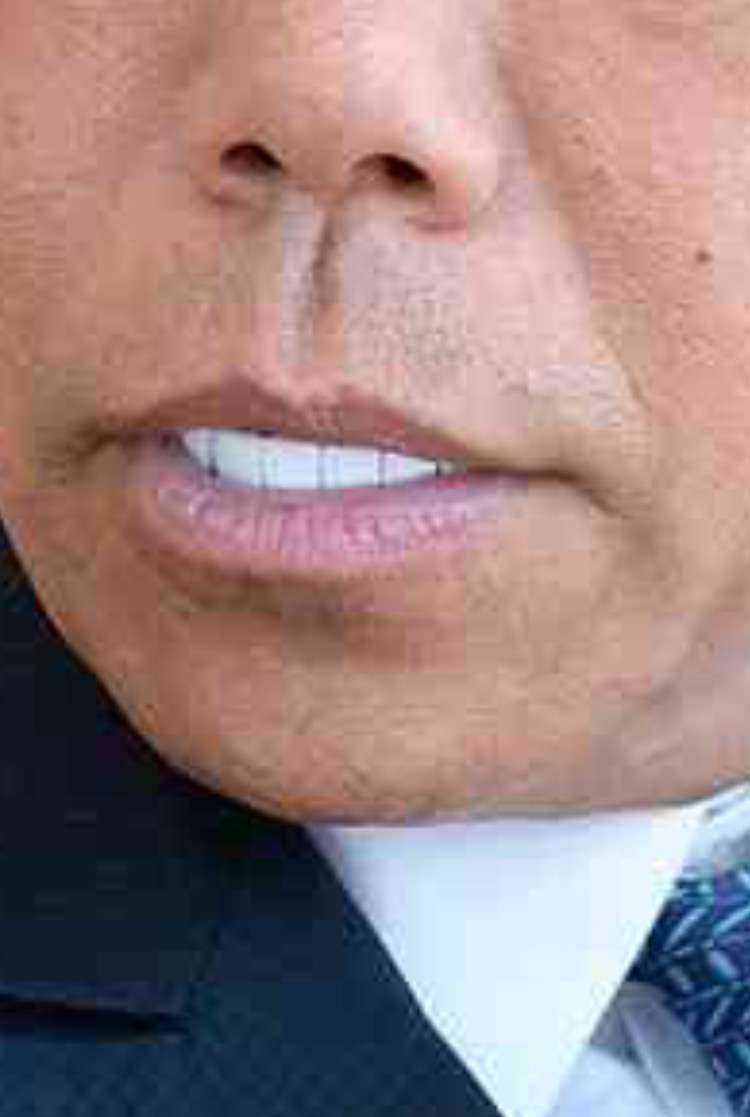 歯のマニキュア
