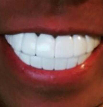 歯の悩み、語り合いませんか?