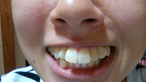 歯列矯正した方、している方
