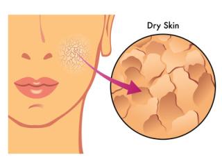 脂漏性皮膚炎の方語りましょう!